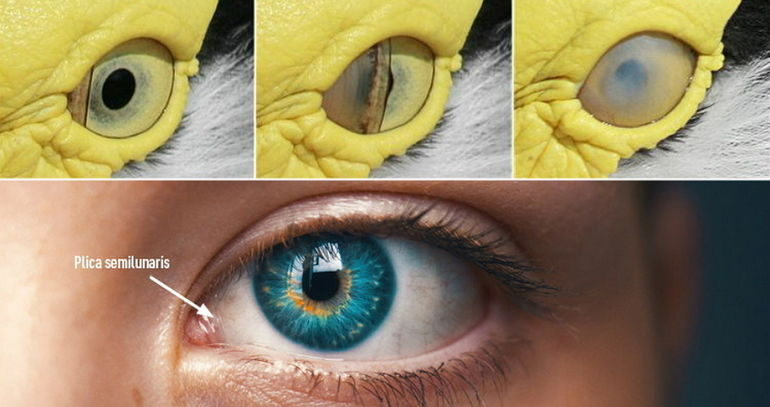 plica semilunaris swollen eye allergies - 750×396