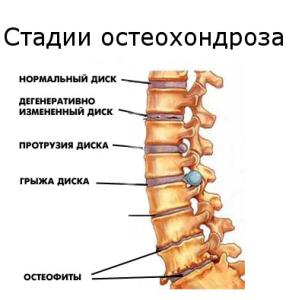 При шейном остеохондрозе кружится голова лечение